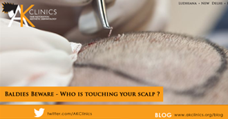 Baldies Beware - Who is touching your scalp ?