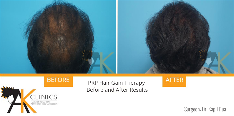 PRP Hair Gain Therapy