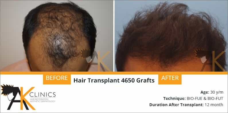 Hair Transplant Results of 4550 Grafts (Grade 5)