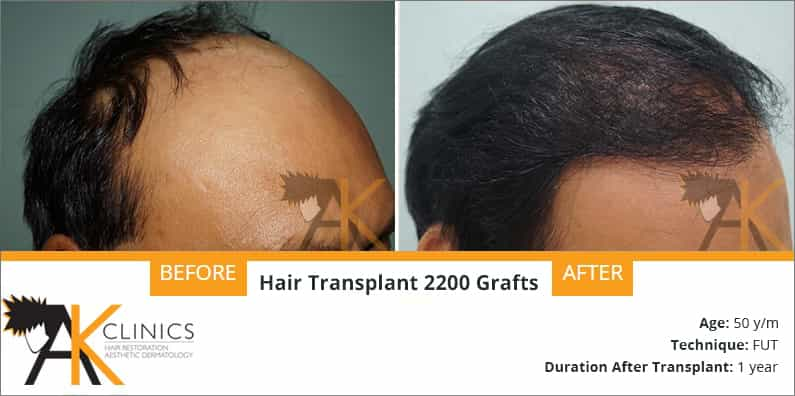 Hair Transplant Result of 2200 Grafts (Grade 4)