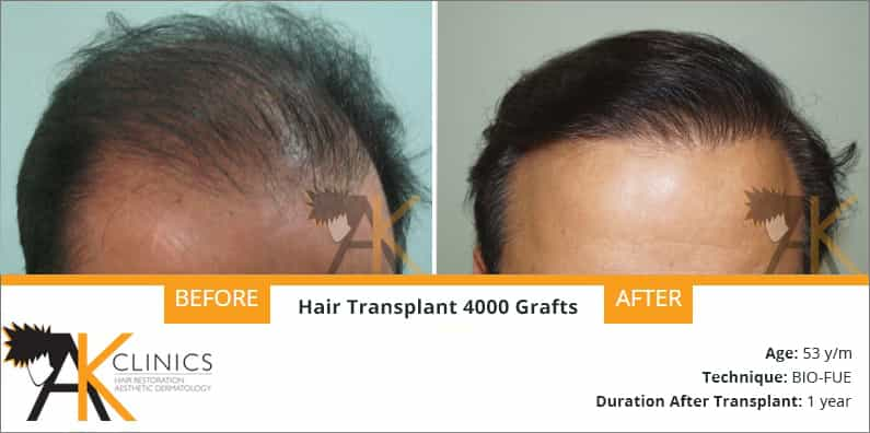 Hair Transplant Result of 4000 Grafts (Grade 6)