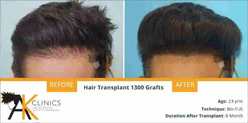 Hair Transplant Result of 1300 Grafts