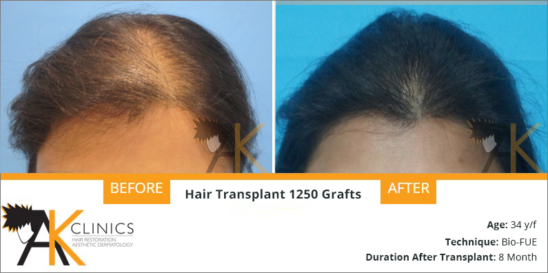 Hair Transplant Result of 1250 Grafts