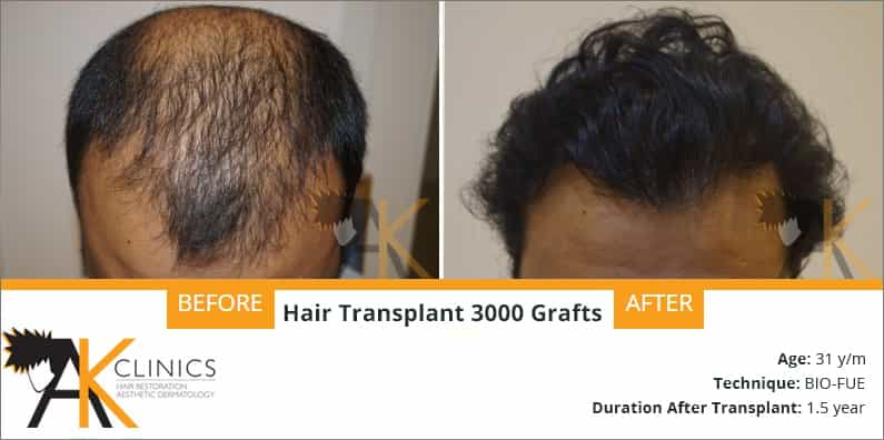 Hair Transplant Result of 3000 Grafts (Grade 5)