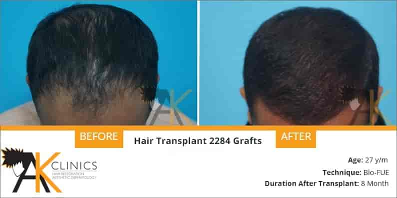 Hair Transplant Result case Study