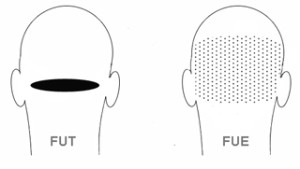 Compare FUE and FUT Hair Transplant Method and Cost