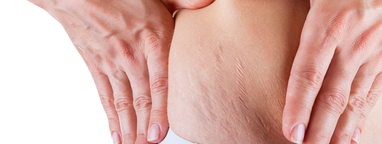 Laser treatment for stretch marks in bangalore