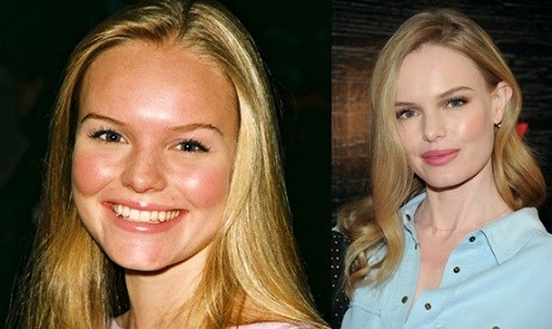 Kate-Bosworth cosmetic surgery