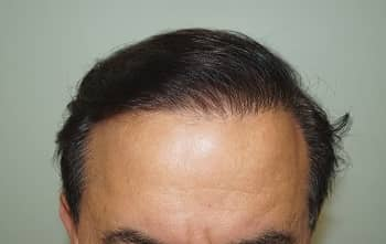 Success Story – 4000 Grafts Hair Transplant Surgery Result after 1 Year
