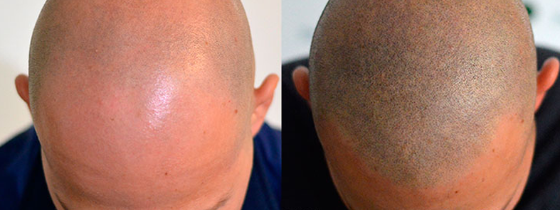 Hair transplant in india cost bangalore