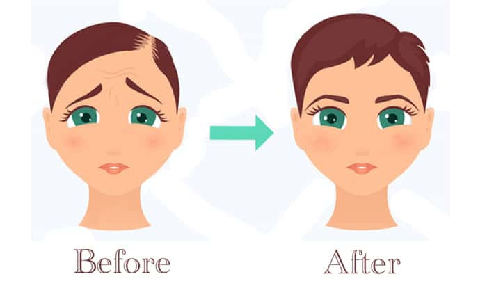 Before & After PRP Treatment